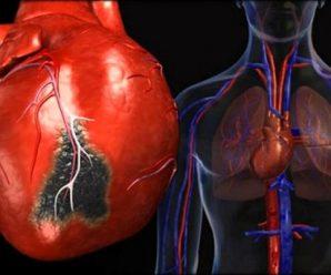 Индекс риска TIMI (Тромболизис при инфаркте миокарда)
