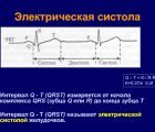 Корригированный интервала QT – Калькулятор онлайн расчета
