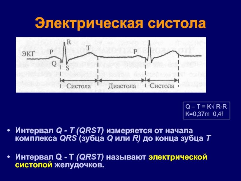 электрическая систола желудочков